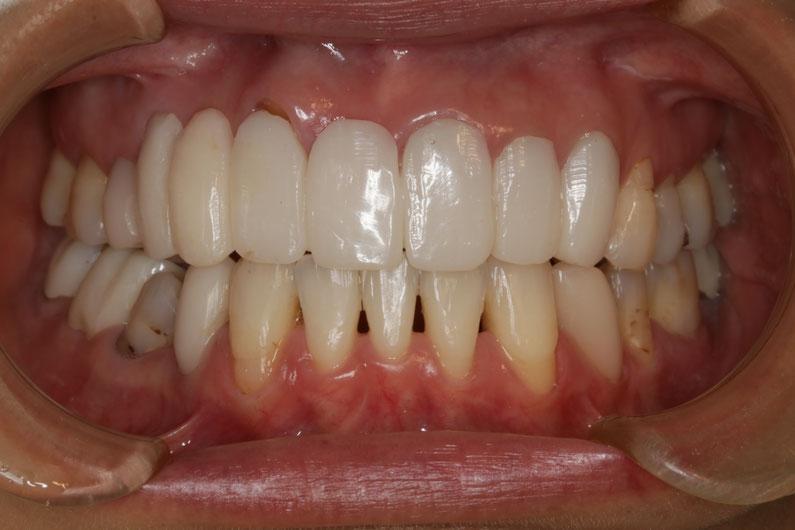 歯茎の再生治療 No.65 差し歯が長い場合の審美歯科ケース