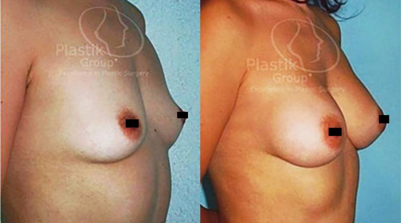 Cirugía de aumento de senos guadalajara