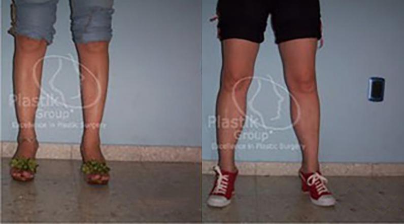 Implantes de pantorrillas en Guadalajara