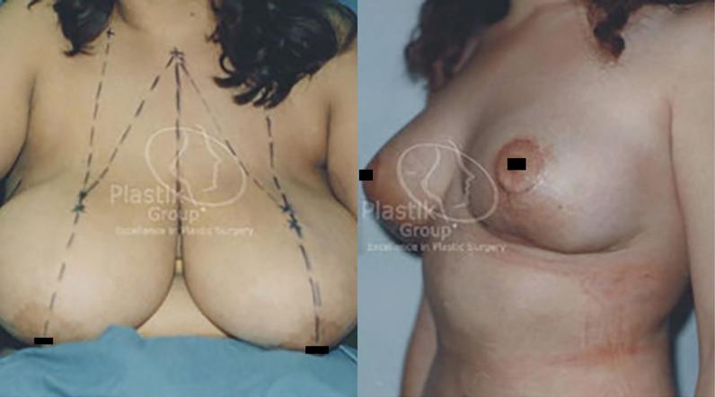 reducción de senos guadalajara