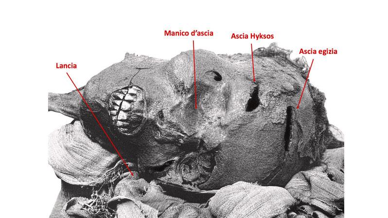 Le ferite sul volto del faraone Seqenenra Tao