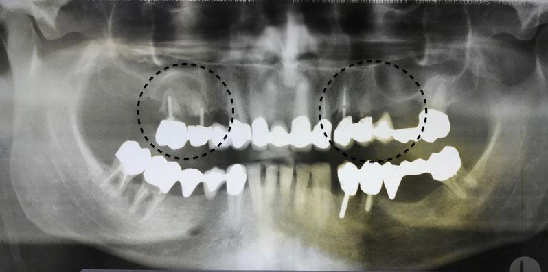 Vorher: Nicht erhaltungswürdige Zähne im Oberkiefer, nicht mehr funktionstüchtige Kronen und Brücken