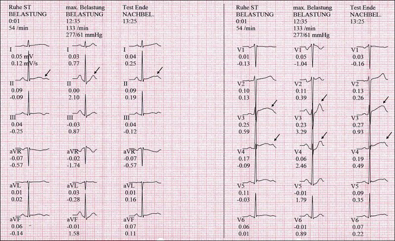 EKG Langes QT-Syndrom LQT2 Belastung Belastung-EKG
