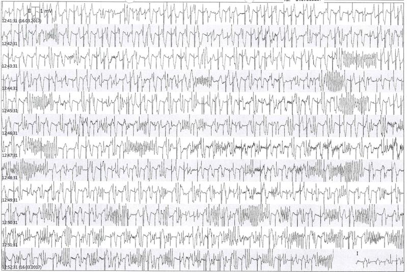 Langzeit-EGK Torsade de Pointes QT-Verlängerung