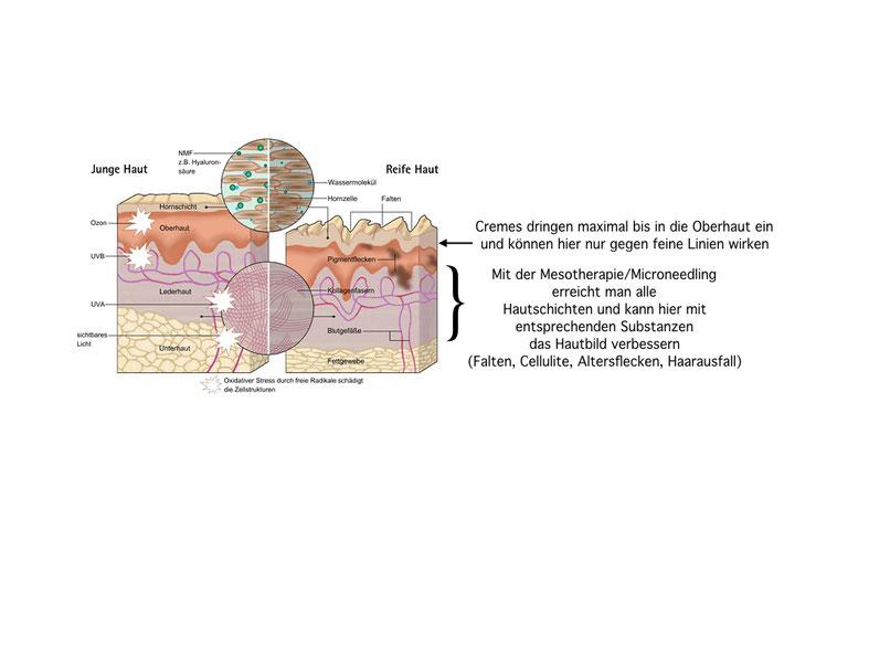 Abbildung in welchen Hautschichten Cremes wirken