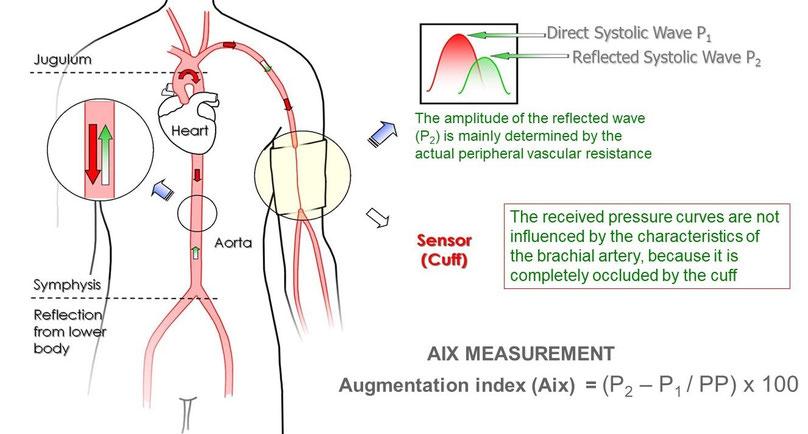 Augmentation Index (AIx)