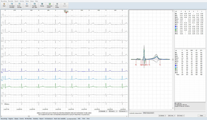 12-Kanal-Langzeit-EKG
