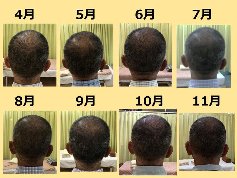 薄毛 鍼灸 つぼ 変化