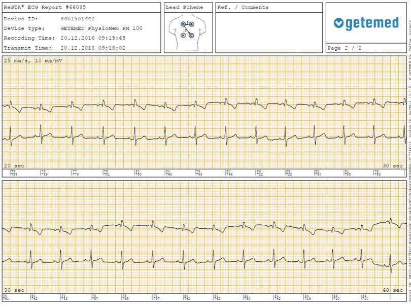 EKG Externer Ereignisrekorder PM100