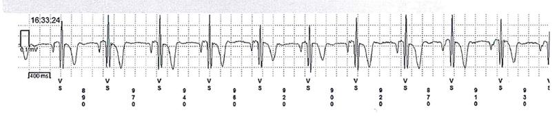 EKG Reveal Linq