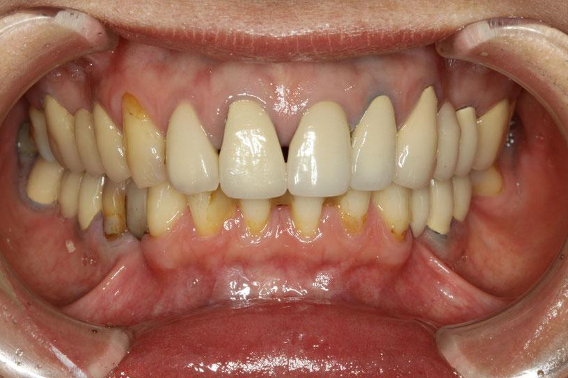 差し歯が古くなってしまった場合 メタルボンド