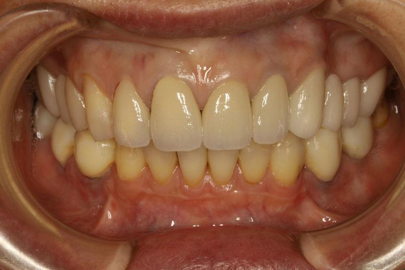 差し歯の治療 オールセラミック
