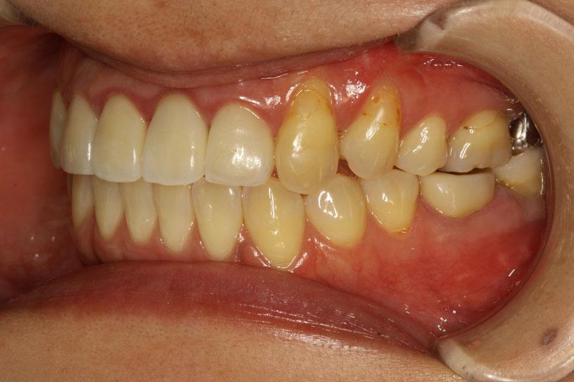 歯ぐきが下がったときの歯科治療