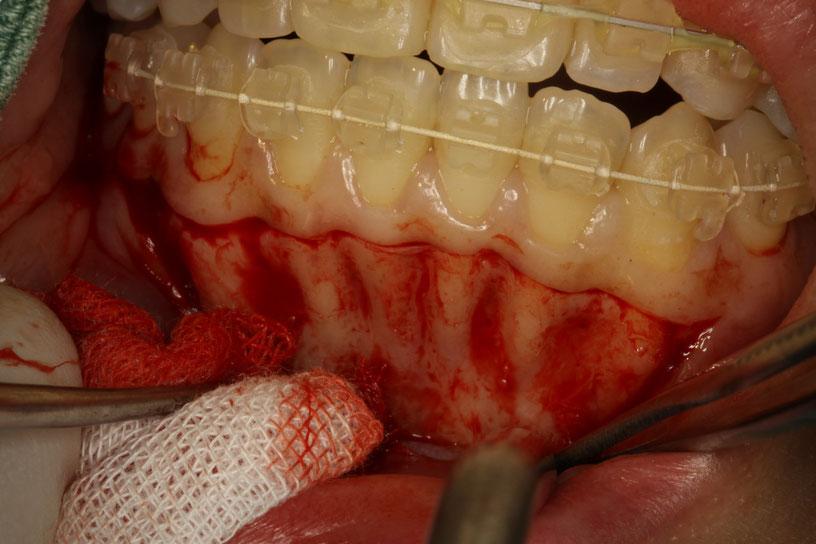 矯正中に歯茎が下がる