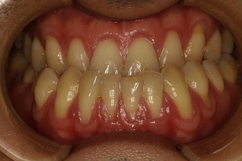 歯茎が下がってしまった方の歯科治療