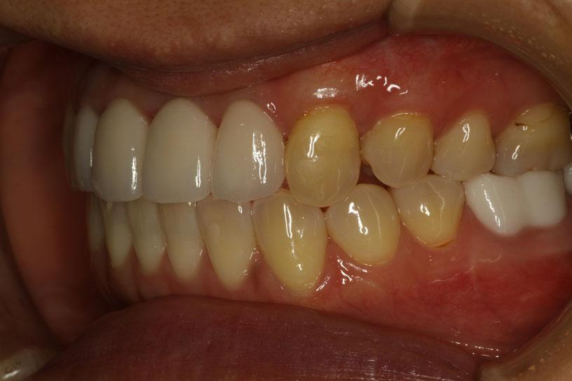 歯ぐきの再生後の状態