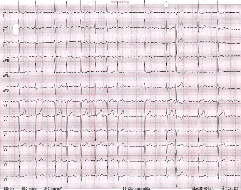 EKG Grobes Vorhofflimmern