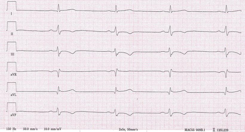 EKG ARVCM Arrhythmogene Rechtsventrikuläre Kardiomyopathie Extremitätenableitungen