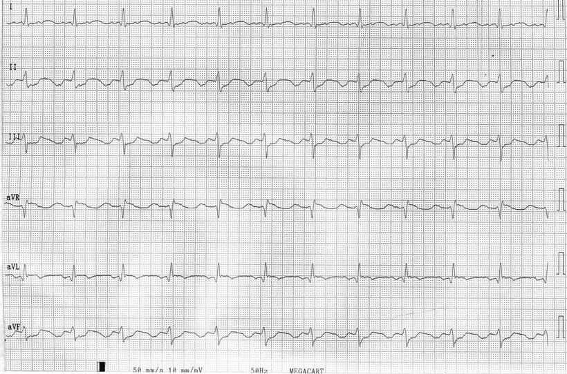 EKG Gewöhnliches Vorhofflattern