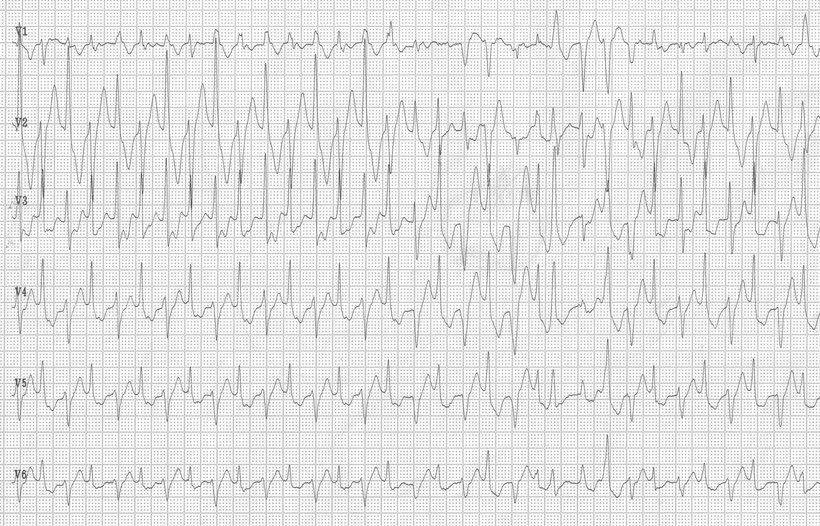 EKG Bidirektionale Kammertachykardie