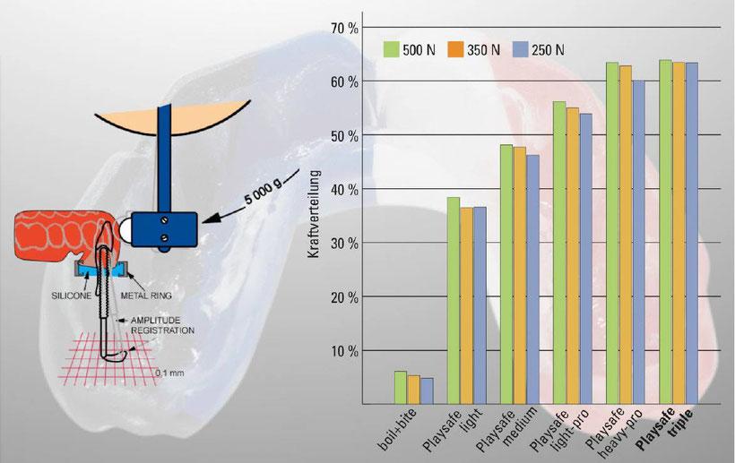 Zahntechnik Stupan Langenthal  individueller Sportmundschutz, Zahnschutz, Playsave Vergleich Grafik