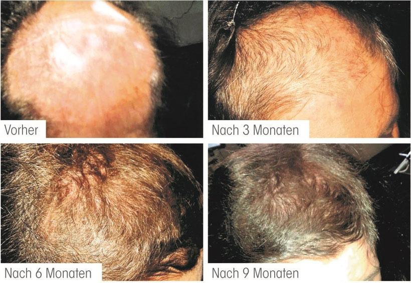 stop&grow lübeck, anti-haarausfall-therapie lübeck