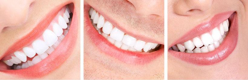 Andere müssen es nicht unbedingt sehen, dass Sie Ihre Zähne regulieren lassen. Wie geht das? (© Kurhan - Fotolia.com)