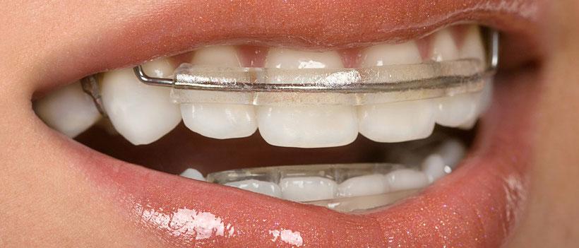 Worin besteht der Unterschied zwischen Zahnspangen und Funktionstherapeutischen Geräten?  (© Can Stock Photo Inc. / BVDC)