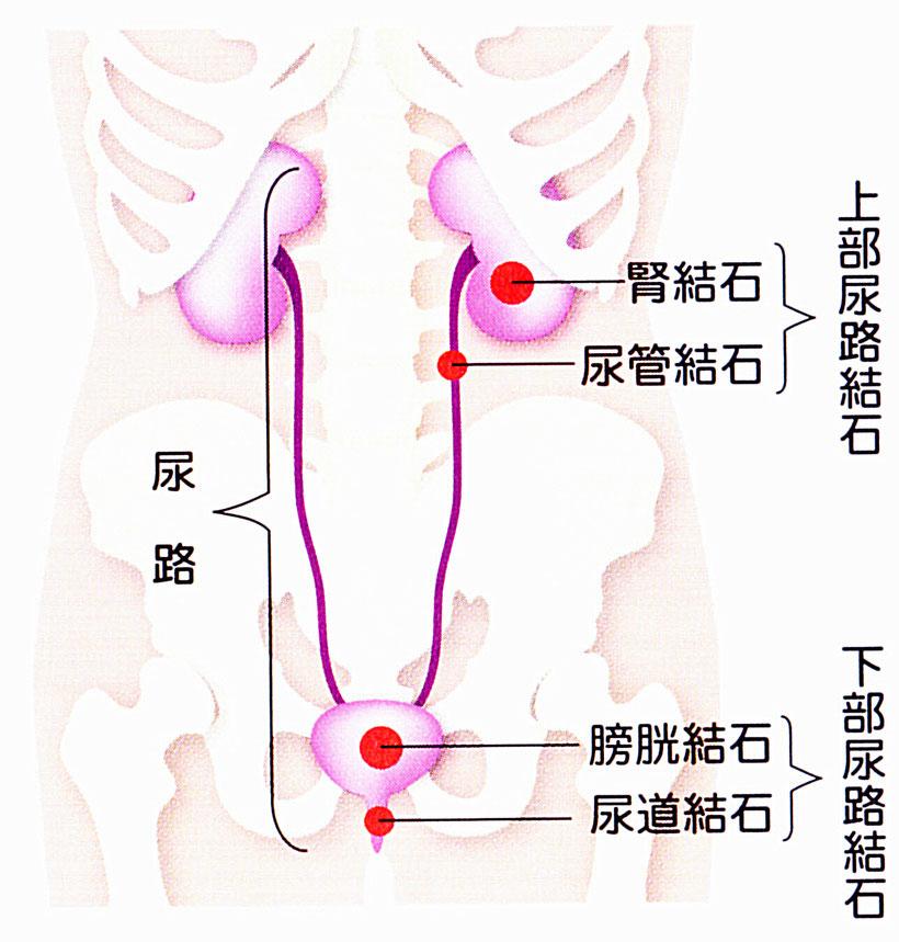 尿路結石症は、腎結石、尿管結石、膀胱結石、尿道結石に分けられます。