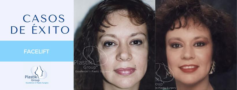 rejuvenecimiento facial guadalajara