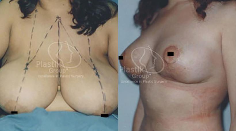 reduccion de senos guadalajara