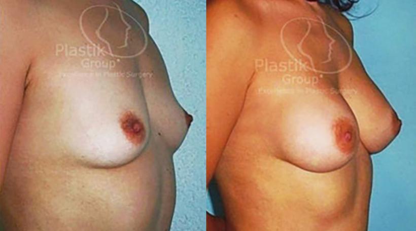 aumento de senos en Guadalajara