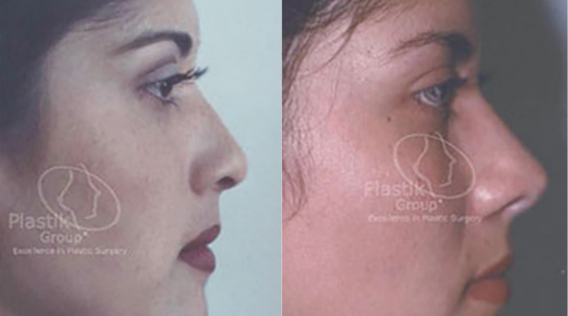Rinoplastia o cirugía de nariz Jalisco