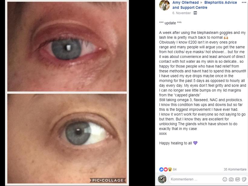 Vorher - Nachher Bild, nach Anwendung der Blephasteam Wärmebrille + der originale Erfahrungsbericht von Amy (Screenshot)