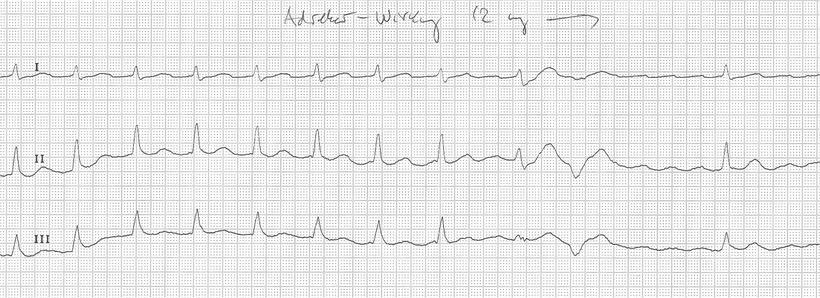 EKG Vorhofflattern Adenosin