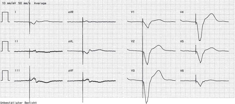 EKG Unipolare RV Stimulation