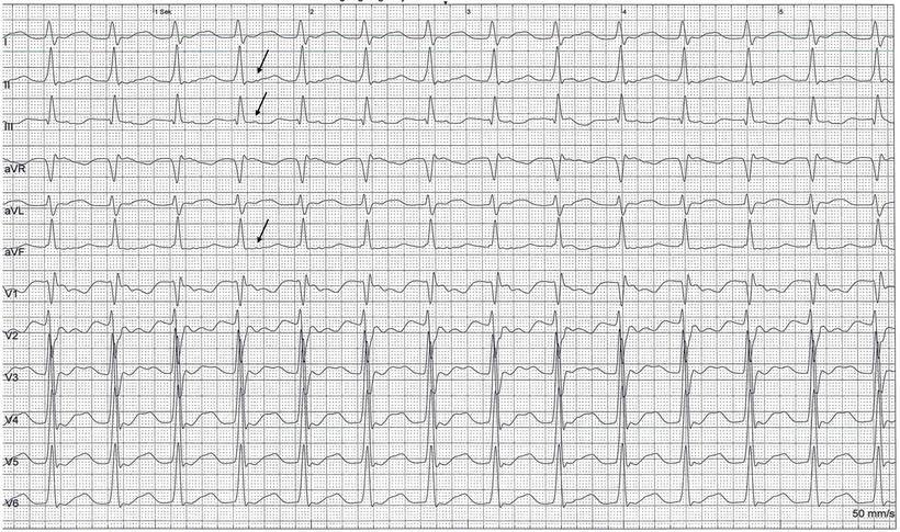 EKG Orthodrome AVRT AV Reentry Tachykardie P Wellen