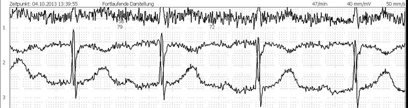 EKG Muskelanspannung Artefakt