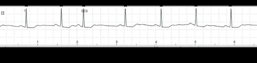 EKG atriale Extrasystole nicht-kompensatorische Pause