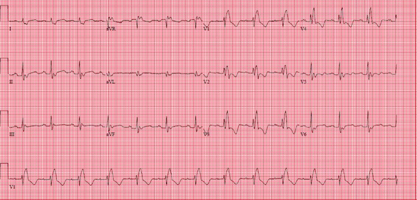 12 Kanal Standard EKG RSB