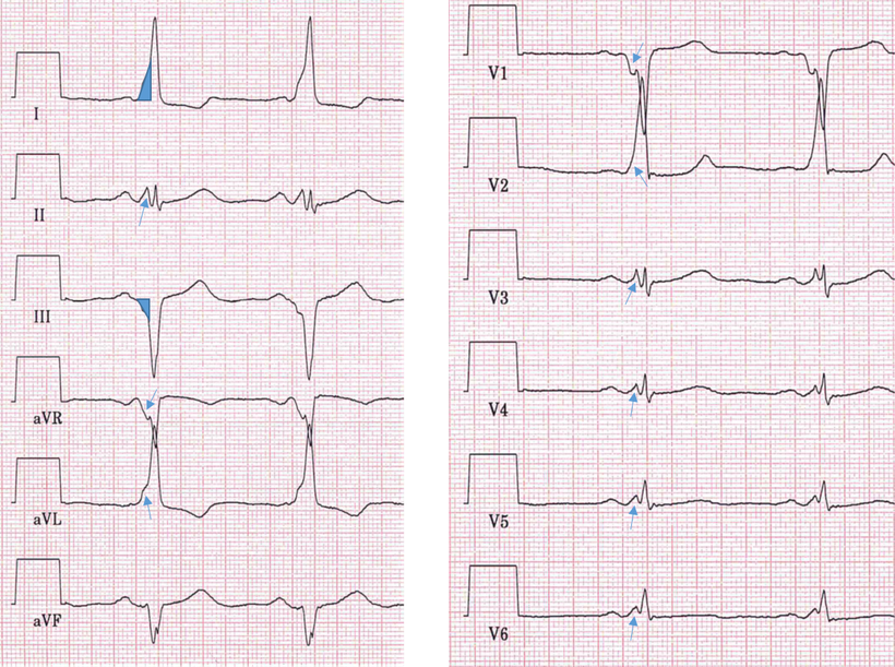 EKG WPW Syndrom Typ B
