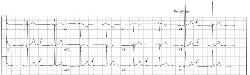EKG U-Welle