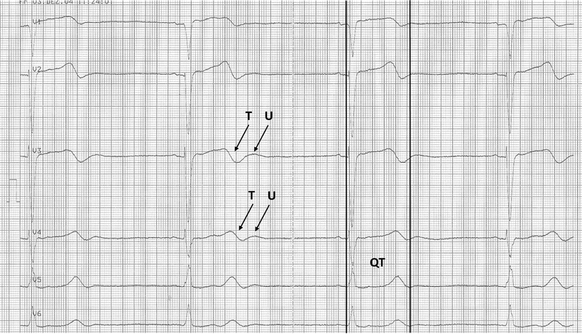 EKG Hypokaliämie