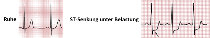 EKG Belastung Horizontale ST-Streckensenkung