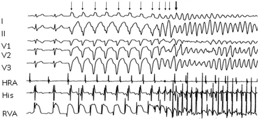 EKG Programmierte Stimulation Kammerflimmern