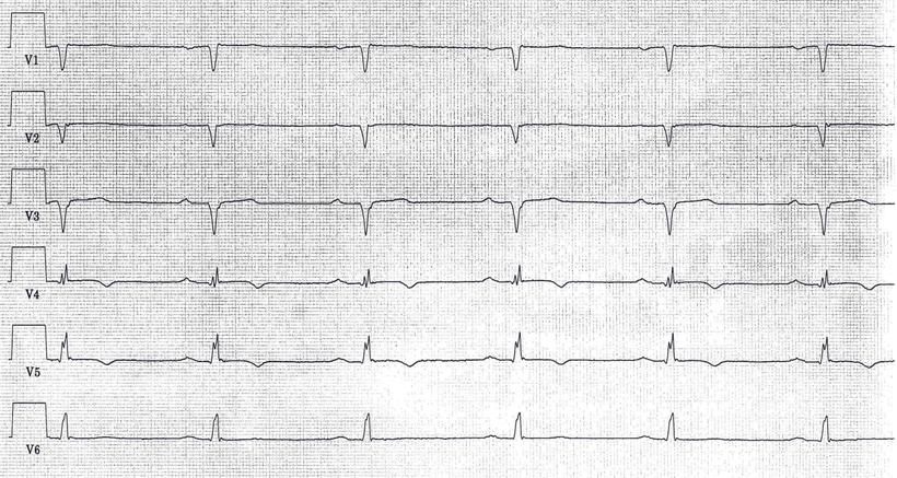EKG Alter Vorderwandinfarkt QS-Zacken V1 bis V3 Aneurysma
