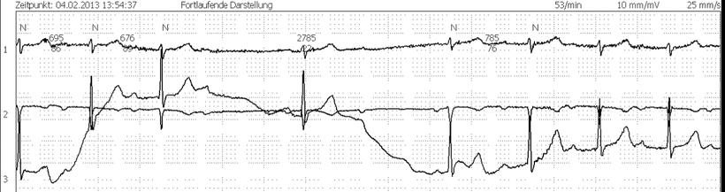 EKG Wandernde Grundlinie AV Block