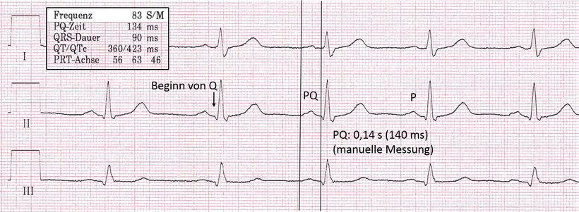 EKG PQ-Intervall Normales EKG