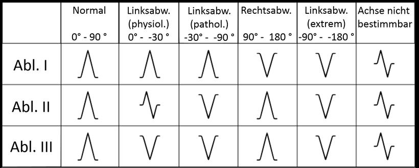 EKG QRS Achse