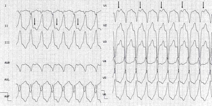 EKG RVOT Tachykardie Anhaltend